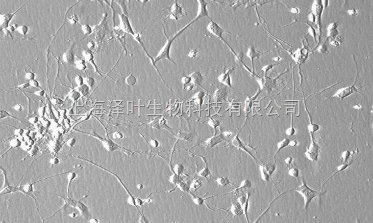 人肠微血管内皮细胞